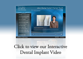 Click to view our Interactive Dental Implant Video